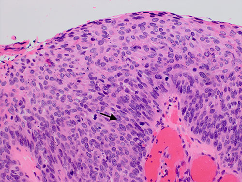 P1069 A Rare Case Of Primary Ovarian Squamous Cell Cancer Metastatic To Colon