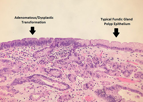 Identifying The Gapps In Hereditary Gastric Polyposis